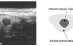 Гипоэхогенный участок при беременности