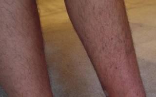 Как лечить потницу на ногах